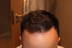 Hairline 3500 (final result) (2015_07_25 19_19_21 UTC).JPG