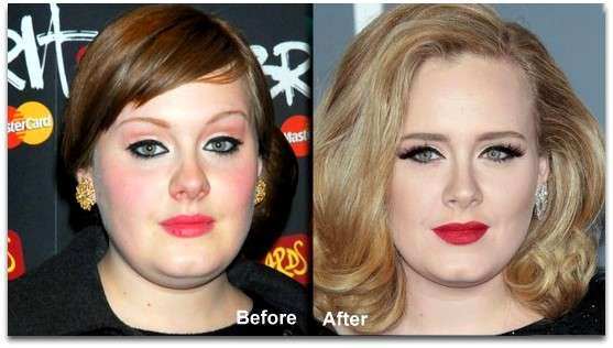 adele-before-after-nose-job-2.jpg