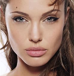 Angelina-Jolie-Plastic-Surgery-Before-and-After