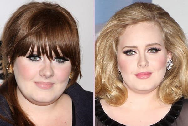 adele-nose-job-feature120411184503.jpg
